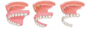 Dental Implants In Dallas