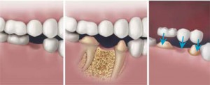 Conventional dental bridge – Tooth reduction for crowns is required.