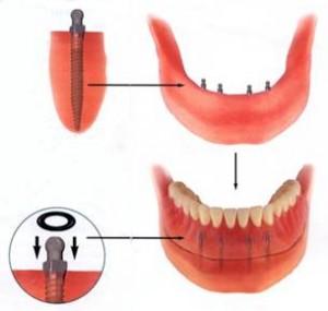 Mini Implant retained Dentures (RP-5)