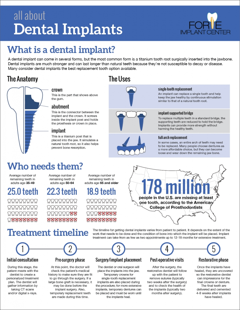 All About Dental Implants