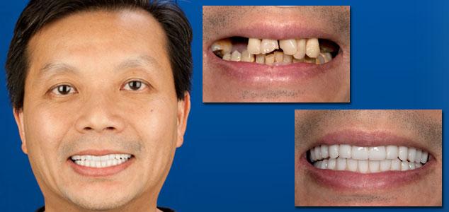 dental implant gallery